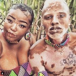 vitiligo quadr