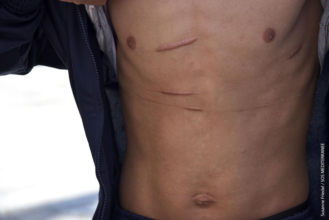 Ein geretter Mann, der mutmaßlich in einem  libyschen Lager misshandelt wurde