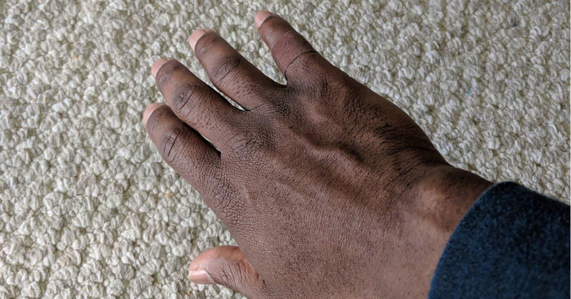 """Dieses Pflaster zeigt, dass """"Hautfarbe"""" mehr ist als ein Farbton"""