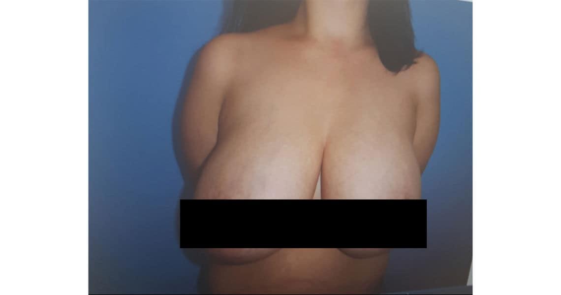 brustverkleinerung op1
