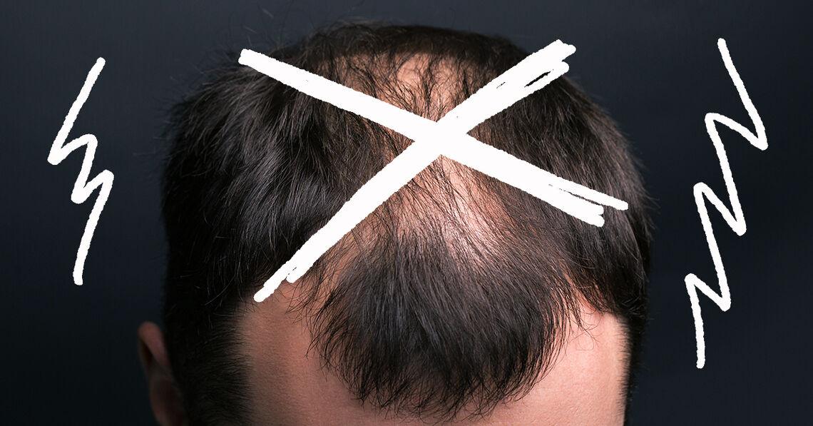 -Glatze-ist-f-r-mich-keine-Option-